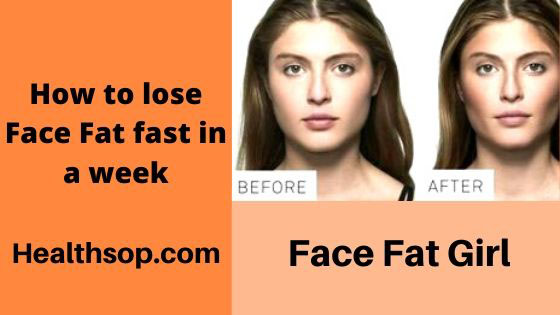 How To Lose Face Fat Fast In a Week