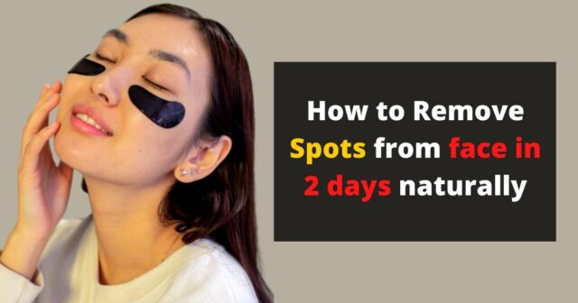 How-to-remove-spots-from-face-in--days-naturally