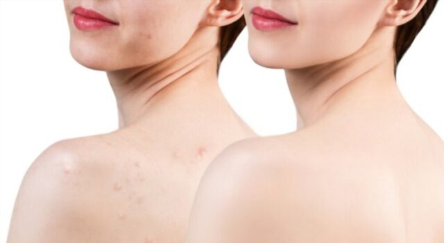 How-to-Get-Rid-of-Shoulder-Acne